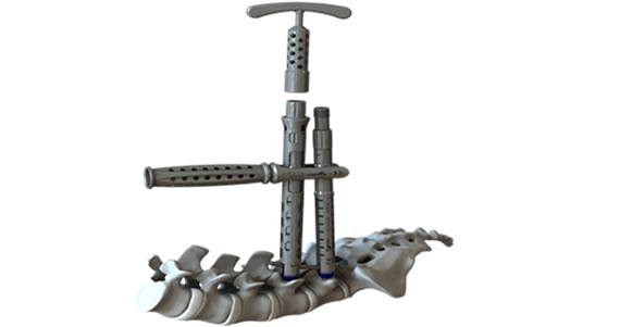 product-pedicle-screw-2