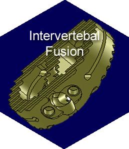 Intervertebral Fusion